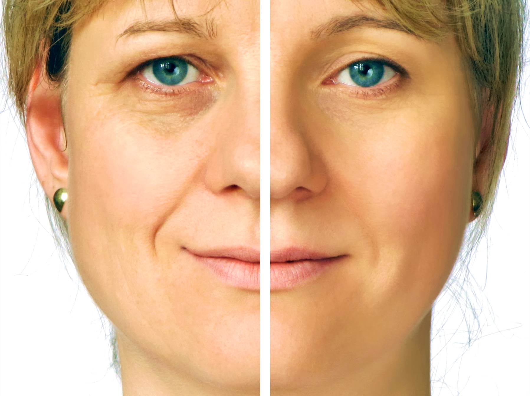 Facial Rejuvenation and Cosmetic Acupuncture Club