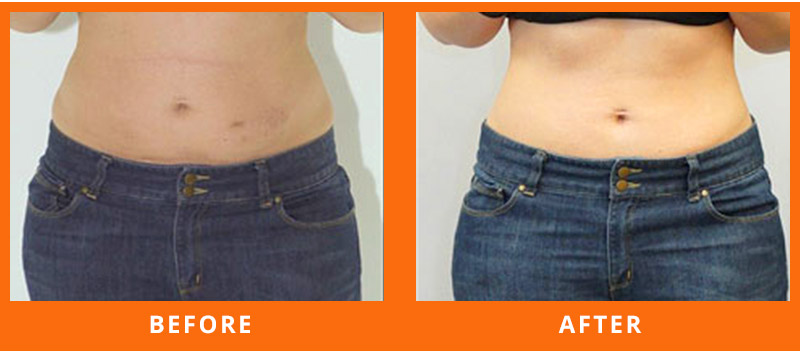 Lipo Laser Treatment for Weight Loss
